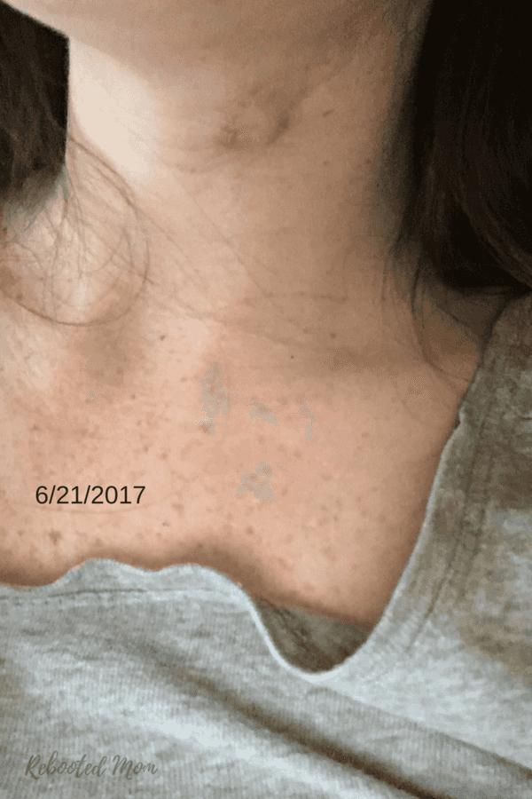 How I Healed my Sebaceous Cyst